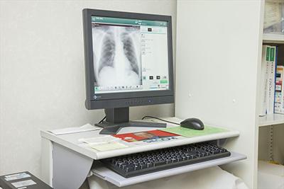 デジタルX線診断システムCRPICO